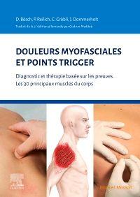 Douleurs myofasciales et points trigger