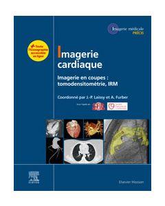 Imagerie cardiaque
