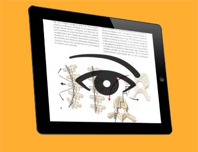 Télécharger l'extrait 15, Techniques de correction des déformations vertébrales par voie postérieure : le cintrage in situ